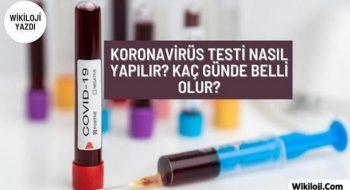 Koronavirüs Testi Nasıl Yapılır? Test Sonucu Ne zaman Çıkar?